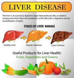 best diet for liver disease